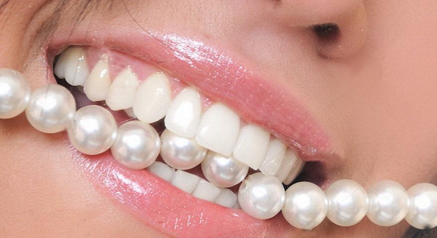 Виниры на передние зубы.